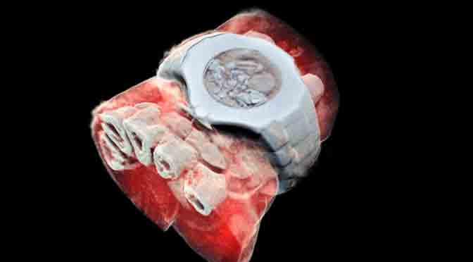 Científicos obtienen la primera radiografía 3D a color